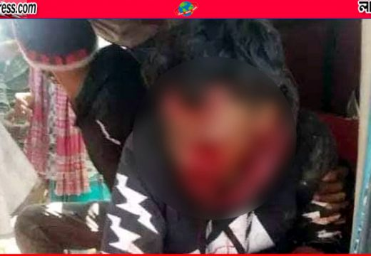 সুনামগঞ্জে গাছের সাথে ধাক্কায় মোটারসাইকেল আরোহীর মৃত্যু
